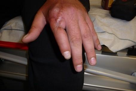 Lange krank fingerkuppe abgeschnitten wie Amputation eines